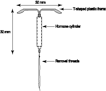 Schematic drawing of Mirena